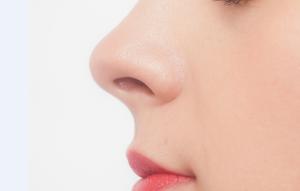 鼻の角栓をオロナインパック